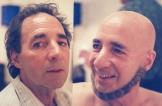 bald0003